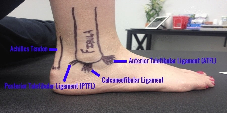 Ankle Sprain Treatment